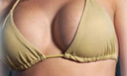 Picture of a woman, happy with her breast lift with implants procedure she had at Top Plastic Surgeons in beautiful San Jose, Costa Rica.  The woman is facing the camera and wearing a mustard yellow bikini top.